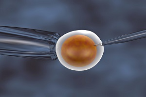 Tandem IVF
